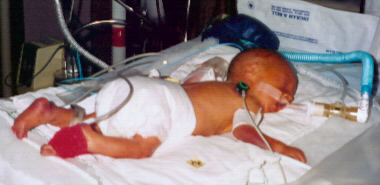 Jordan at One day old; Actual size=180 pixels wide